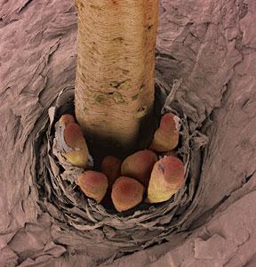wpid-eyelash-mites.jpg