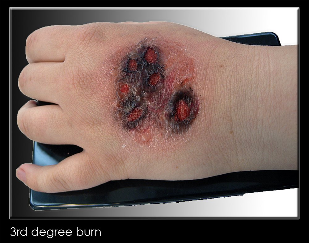 31 days of halloween makeup – day 6: how to create a 3rd degree burn